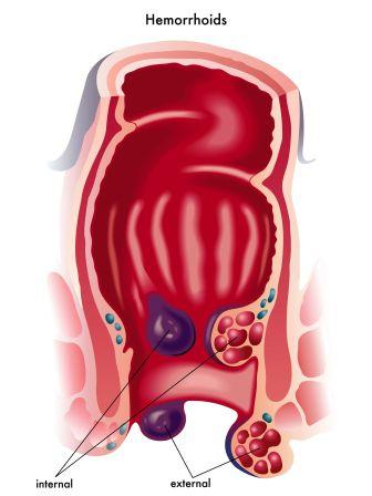 Haemorrhoids: Ayurvedic Treatment, Medicines, Remedies