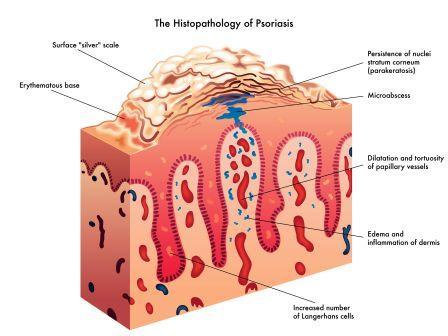 psoriasis phd thesis