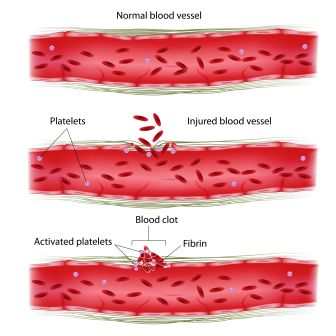 blood clotting process