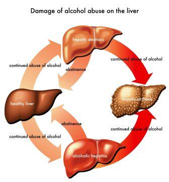 Liver Diseases: Symptoms, Treatment, Home Remedies