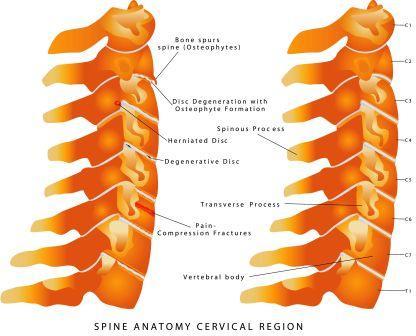 Normal neck bones versus cervical spondylosis