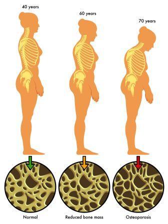 Osteoporosis in women