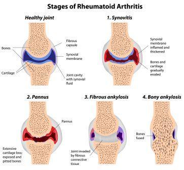 stages of rheumatoid arthritis