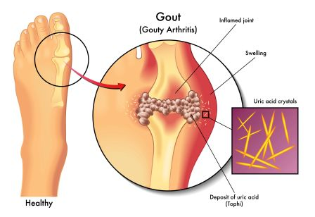 how to relieve gout pain in elbow uric acid causes joint pain gout treatment naproxen