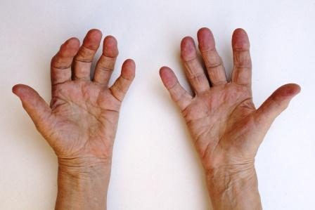 Early Stage Of Rheumatoid Arthritis: Ayurvedic Treatment
