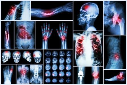 fracture, dislocation cva