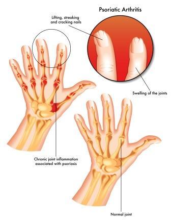 Rheumatoid arthritis артрит